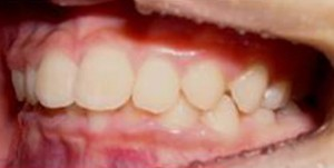 orthodontictherapy_033