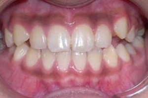 orthodontictherapy_037