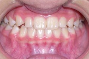 orthodontictherapy_041
