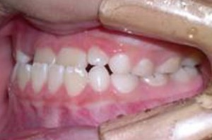 orthodontictherapy_042