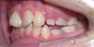 orthodontictherapy_052