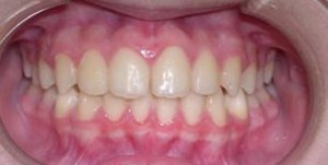 orthodontictherapy_056