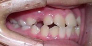 orthodontictherapy_063