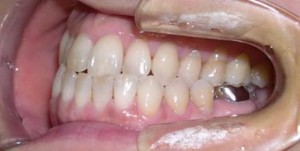 orthodontictherapy_082