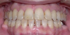 orthodontictherapy_085