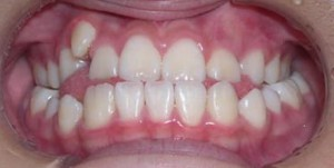 orthodontictherapy_088