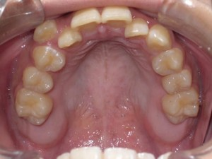 orthodontictherapy_116