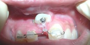 orthodontictherapy_121