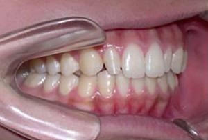 orthodontictherapy_134
